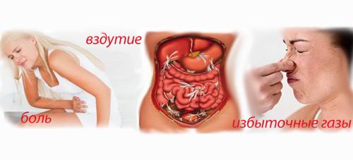 Газы в кишечнике, симптомы