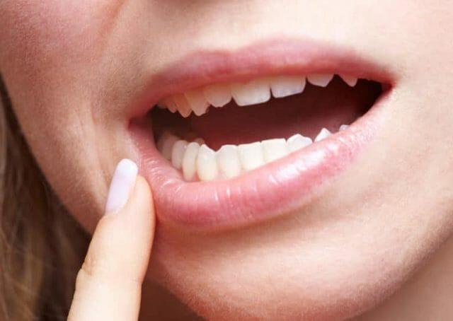 Гвоздичное масло эффективно снимает зубную боль