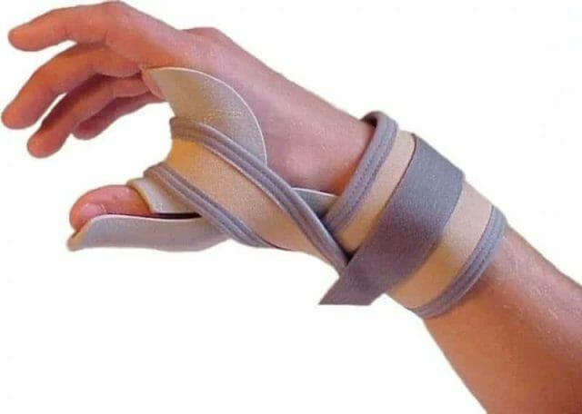Растяжение большого пальца руки